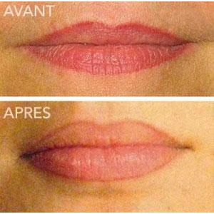 tatouage lèvres