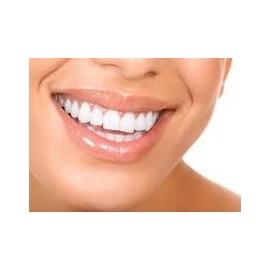 Blanchiment des dents - 1 séance de 20 minutes