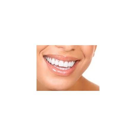 Blanchiment des dents - 3 séance de 20 minutes
