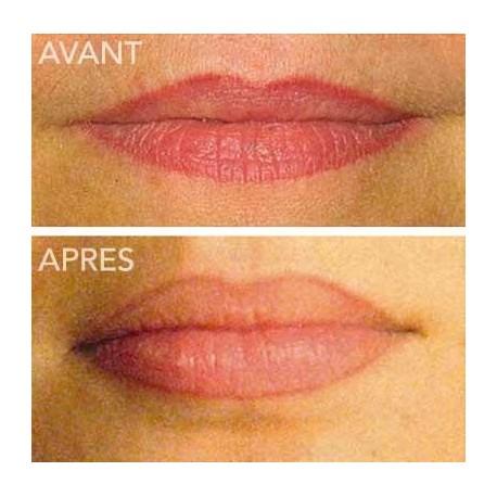 Tatouage Esthetique semi-permanent - Tatouage contour des levres - Canal St Martin - Paris 10
